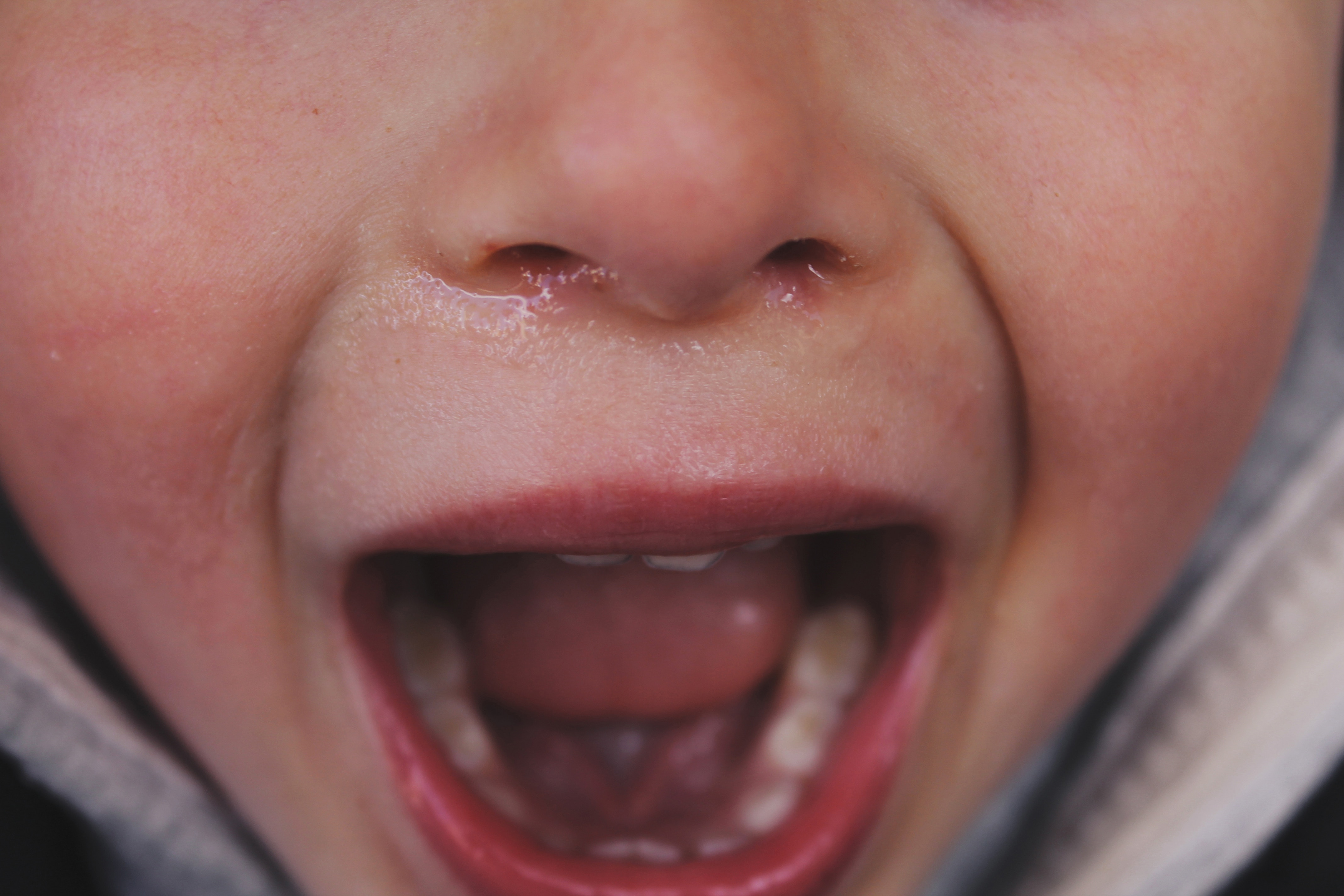close up of young child screaming